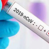 Emergenza COVID-19,  Sospensione delle attività ambulatoriali negli Ospedali