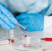 Coronavirus, Mercogliano: la positiva è una 55enne