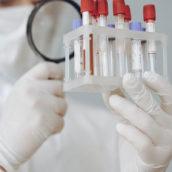 """Sperimentazione nuovi anticorpi monoclonali: l'Azienda ospedaliera """"Moscati"""" pronta ad arruolare i volontari"""